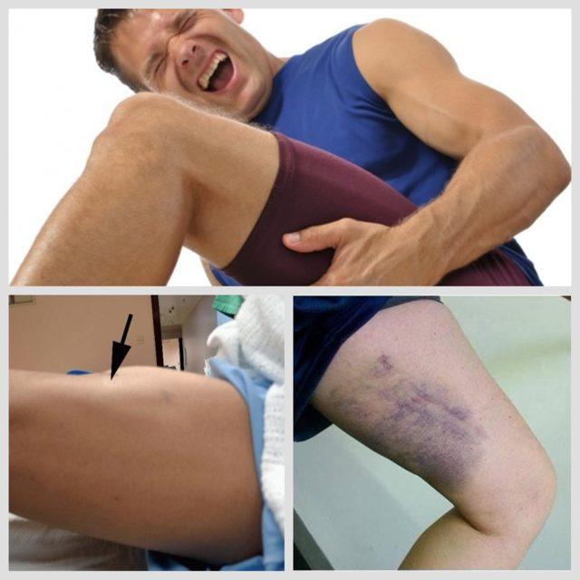 Растяжение мышц бедра: лечение, симптомы, первая помощь