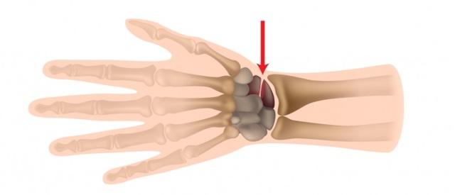 Перелом ладьевидной кости кисти: лечение и последствия