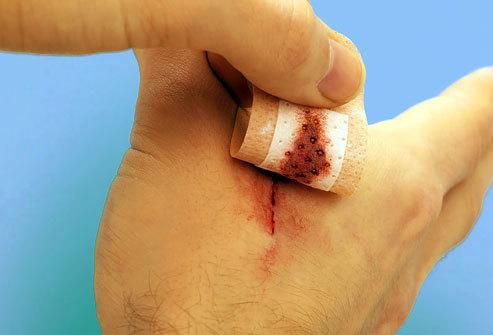 Чем обработать и как лечить глубокий порез на ладони?