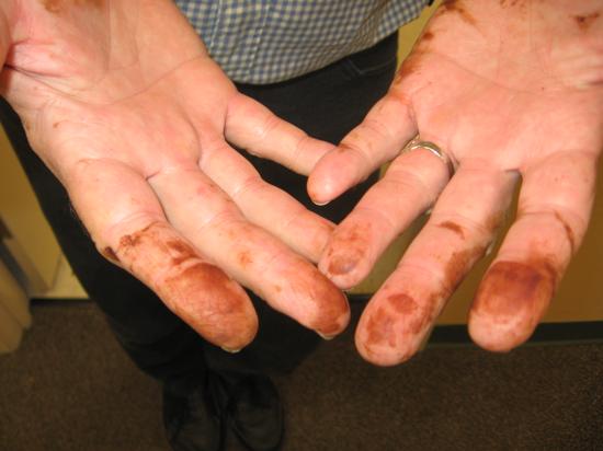 Ожог марганцовкой: оказание первой помощи и дальнейшее лечение