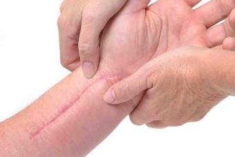 Как избавиться от шрамов в домашних условиях: обзор эффективных методов