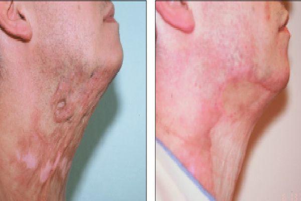Пересадка кожи после ожога: показания и противопоказания, технология