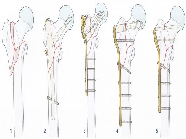 Перелом бедренной кости первая помощь классификация лечение