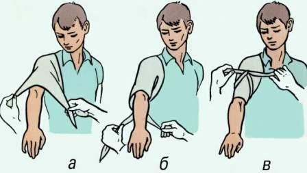 Тампонада раны при кровотечении: правила наложения