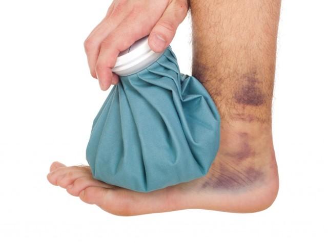 Признаки растяжения связок: первая помощь и диагностика