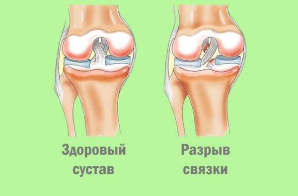 Растяжение связок колена: симптомы и лечение