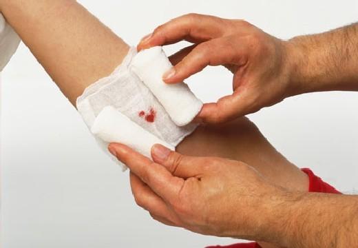 Мокнущая рана: чем подсушить, обработать, лечить?
