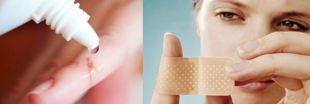 Глубокий порез пальца: как остановить кровь и чем лучше обработать?