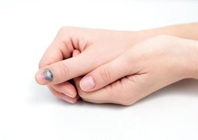 Ушиб ногтя на руке – что делать и чем лечить сильный ушиб ногтя