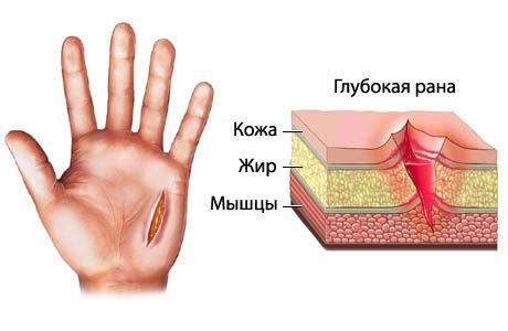 Как остановить кровь из раны: методика в домашних условиях