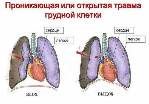 Ушиб грудной клетки: первая помощь, лечение, последствия