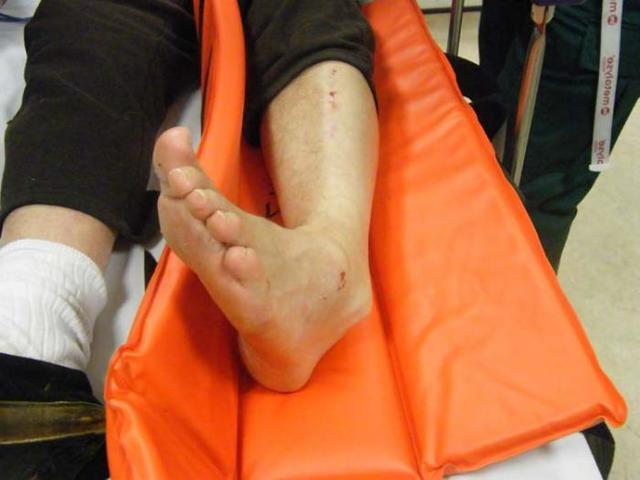 Перелом ноги: первая помощь, лечение, реабилитация