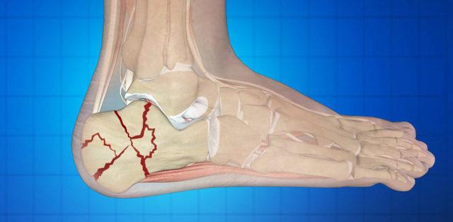 Перелом пяточной кости (пятки): лечение, реабилитация