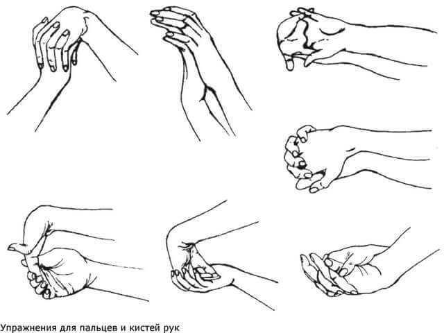 Перелом лучевой кости руки: что делать, лечение, реабилитация