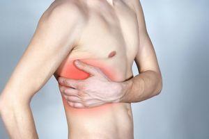 Ушиб ребра: первая помощь, лечение, последствия