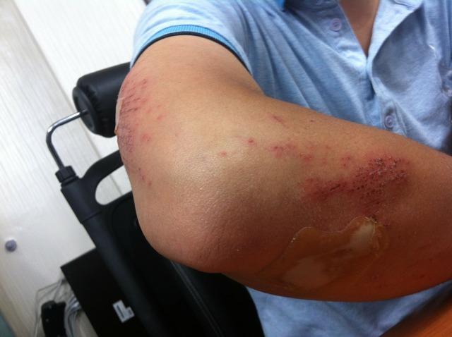 Перелом локтевой кости руки: лечение, срок срастания