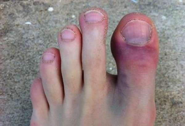 Перелом пальца ноги: первая помощь, лечение, реабилитация