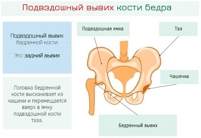 Вывих тазобедренного сустава: причины, лечение, реабилитация