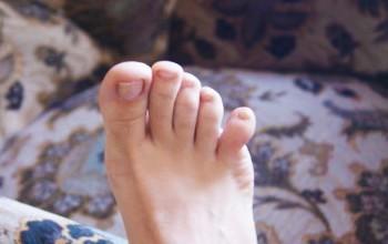 Вывих пальца на ноге: первая помощь, лечение, реабилитация