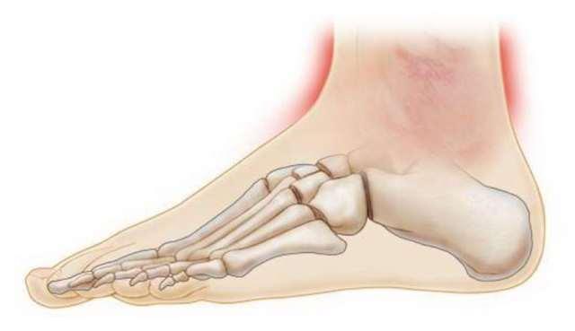 Ушиб голеностопного сустава (голеностопа): лечение, реабилитация