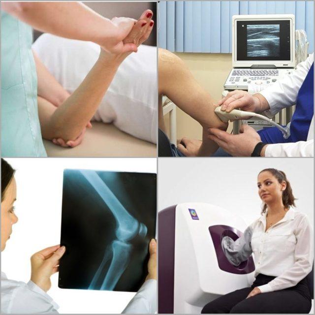 Перелом локтевого сустава (локтя): лечение и реабилитация